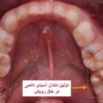 اولین دندان آسیای بزرگ دائمی و اهمیت آن